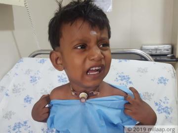 help-yogesh-balajee-1
